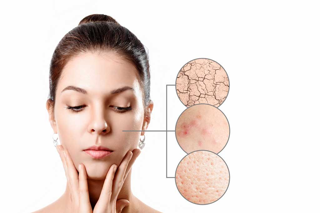 pomoc dla skóry